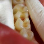 popravljanje zuba novi sad