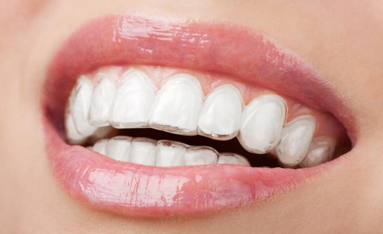Ispravljanje zuba folijama i alajner terapije