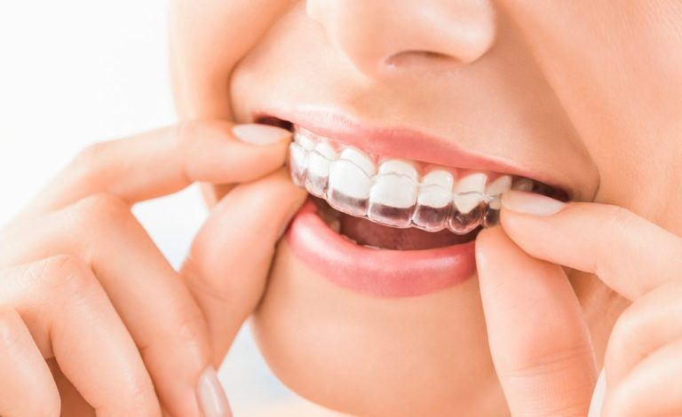 Ispravljanje zuba folijama i alajner terapija