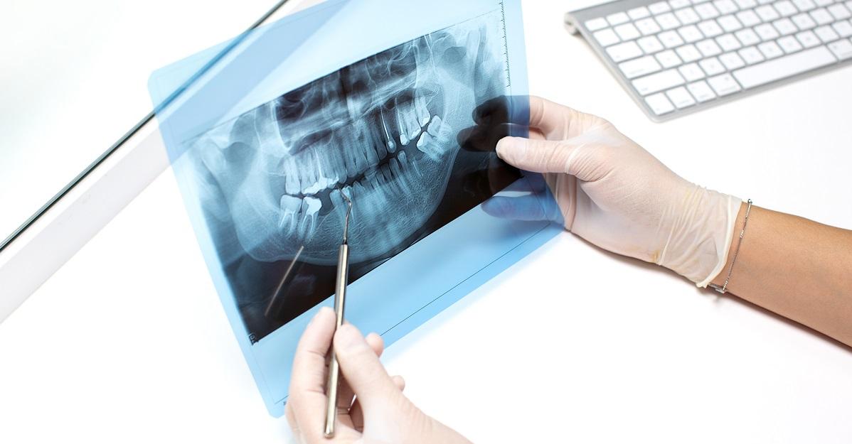 rizik od zracenja prlikom snimanja zuba