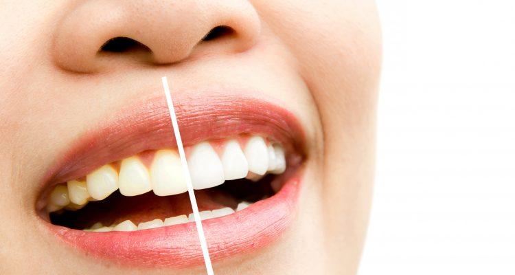 pusenje je stetno za zube