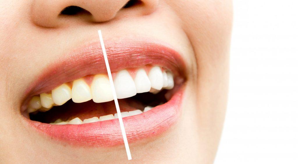 duvanski dim je uzrok propadanja zuba